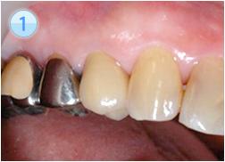 上の歯の白い歯の一つが被せ物(陶材焼付鋳造冠 )です。どれかお分かりになりますか?